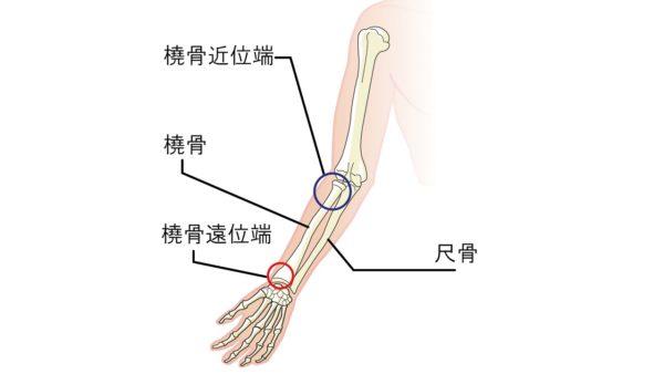 橈骨遠位端
