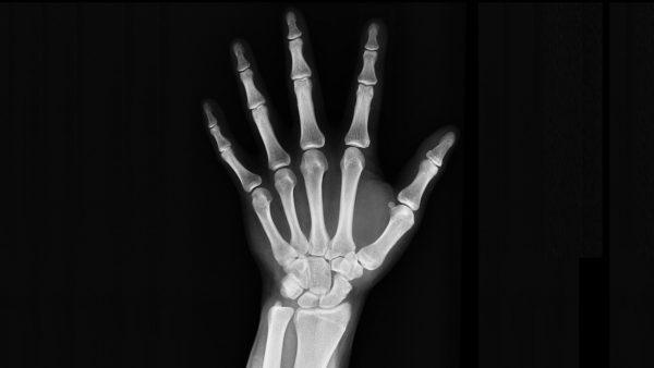 手首のレントゲン